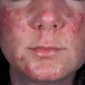 Акне: лікування, симптоми і причини вугрової хвороби, фото