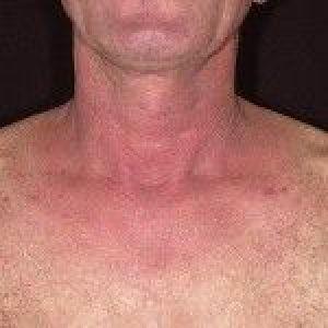 Алергічний дерматит: лікування у дітей та дорослих, симптоми, і фото