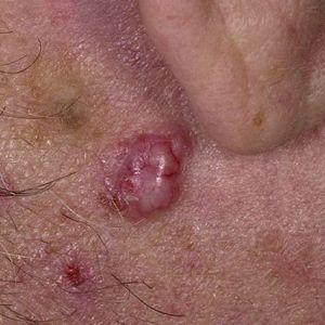 Базально-клітинний рак