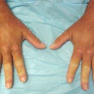Що таке вогнищева склеродермія: ознаки і методи лікування хвороби