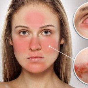 Що таке розацеа на обличчі, причини її появи, симптоми і лікування
