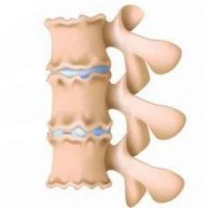 Дегенеративно-дистрофічні зміни хребта