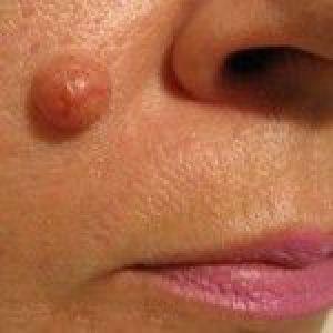 Фіброепітеліальний невус: видалення і лікування
