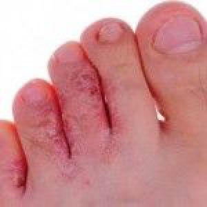 Грибок на пальцях ніг: лікування народними засобами