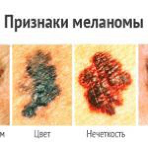 Фото меланом: найнебезпечніші родимки