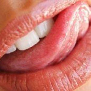 Глоссит: симптоми, причини і лікування