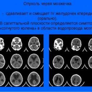 Запаморочення і головний біль як симптоми пухлини мозочка
