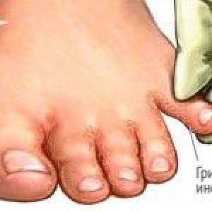 Грибок стопи: основні симптоми та лікування захворювання