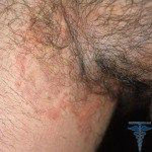 Грибок у дітей: дріжджовий грибок на нігтях рук і ніг у дитини