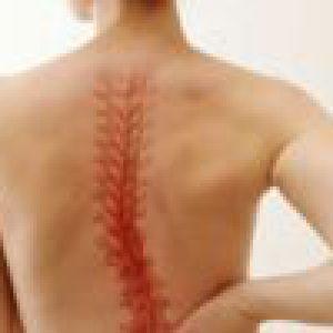 Використання масажу для лікування остеохондрозу шийного відділу
