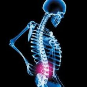 Ефективні способи лікування дискогенного радикуліту