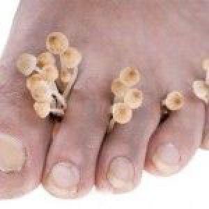 Ефективні засоби для лікування грибка нігтів на ногах