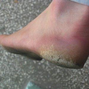 Ефективні засоби від натоптишів на ногах в наших аптеках