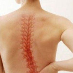 Як позбутися від сколіозу грудного відділу хребта
