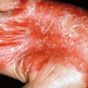 Шкірні захворювання: фото, симптоми, лікування захворювань шкіри