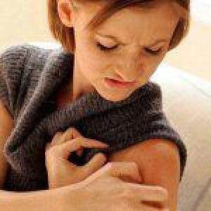 Шкірні захворювання і їх лікування
