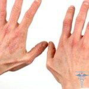 Крем і мазь від дерматиту на руках і обличчі у дорослих і дітей