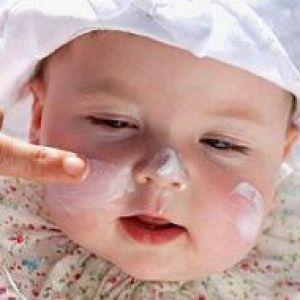 Крем від алергії