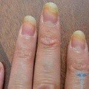Лікування грибка нігтя на ногах яблучним оцтом