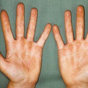Лікування тріщин і сухої шкіри рук в домашніх умовах