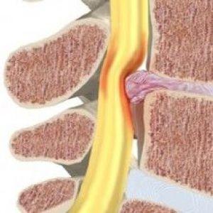 Лікування захворювань сідничного нерва