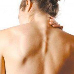 Особливості лікування спондильозу шийного відділу хребта