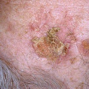 Плоскоклітинний рак шкіри