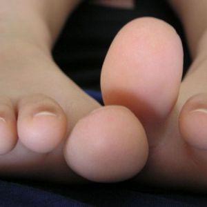 Чому болить суглоб великого пальця на нозі
