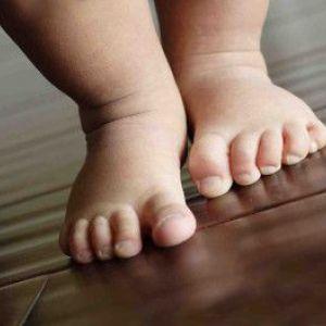 Чому сохне і лущиться шкіра на ногах, що робити при цьому