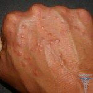 Чому тріскається шкіра на пальцях рук: тріщини близько пальців і нігтів