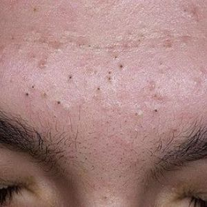 Причини і лікування появи чорних крапок на обличчі і на носі
