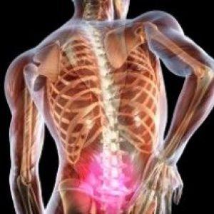 Причини і симптоми появи грижі в пояснічнм відділі. Ефективні методи діагностики і лікування