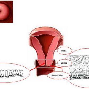 Причини виникнення ерозії шийки матки