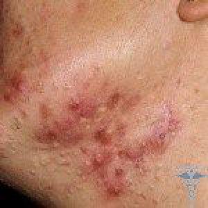 Прищі на шиї: причини і лікування