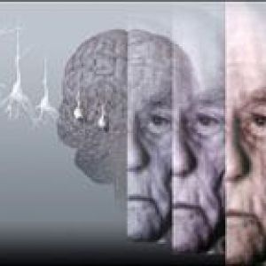 Психоорганический синдром
