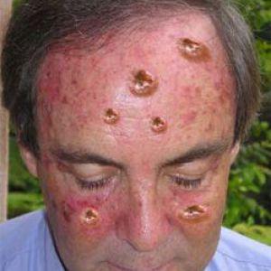 Рак шкіри - симптоми