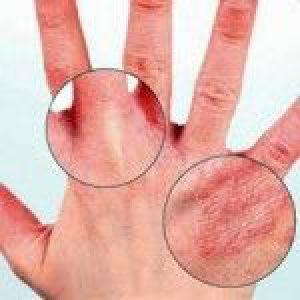Різновиди прищів на шкірі обличчя і рук