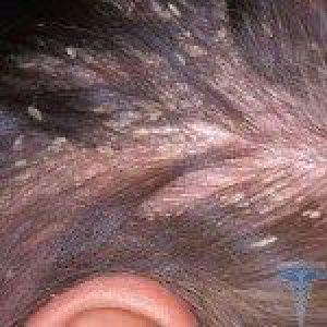 Себорея шкіри голови - чим і як лікувати, ознаки та фото