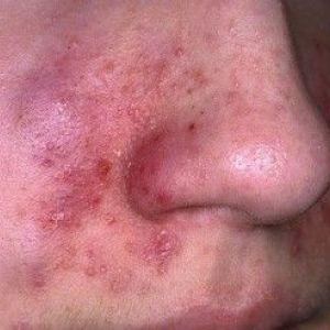 Себорейний дерматит на обличчі: фото, причини, лікування дерматиту на обличчі