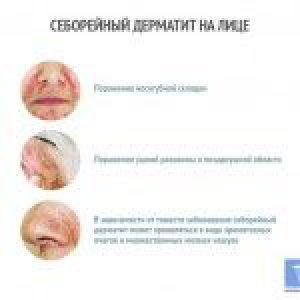 Себорейний дерматит на обличчі: лікування, симптоми і фото