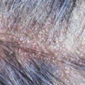 Себорейний дерматит волосистої частини голови: фото, причини, лікування