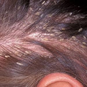 Себорейний дерматит