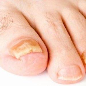 Симптоми і лікування грибка на ногах