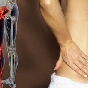 Симптоми і лікування ішіасу. Консервативні і народні методики