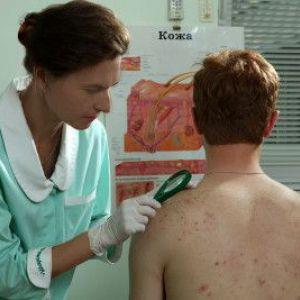 Симптоми і лікування препаратами висівкового лишаю у людини