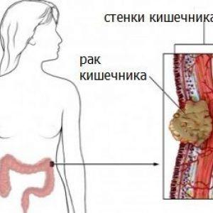 Симптоми раку кишечника