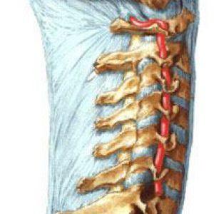 Синдром хребетної артерії