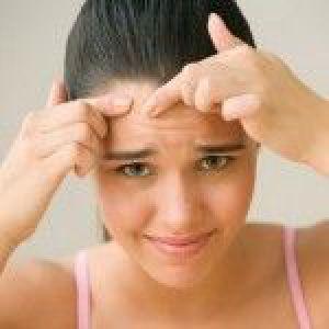 Засоби від прищів на обличчі для підлітків: огляд препаратів