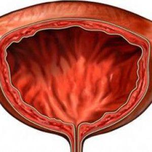 Прискорене сечовипускання як симптом циститу