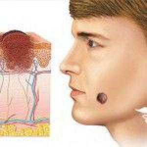 Видалення родимок на обличчі: думка лікарів